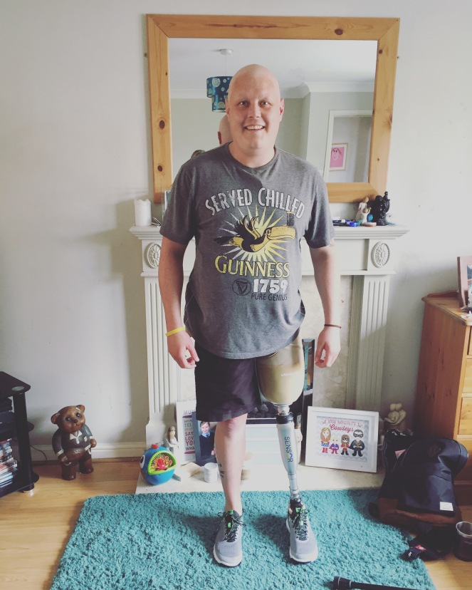 New Prosthetic leg after amputation due to bone cancer, Ewing's Sarcoma